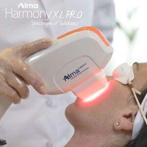 pigmentvlekken laserbehandeling